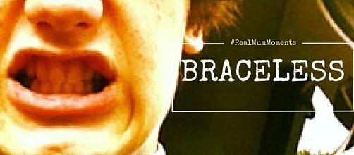 Braceless Photo
