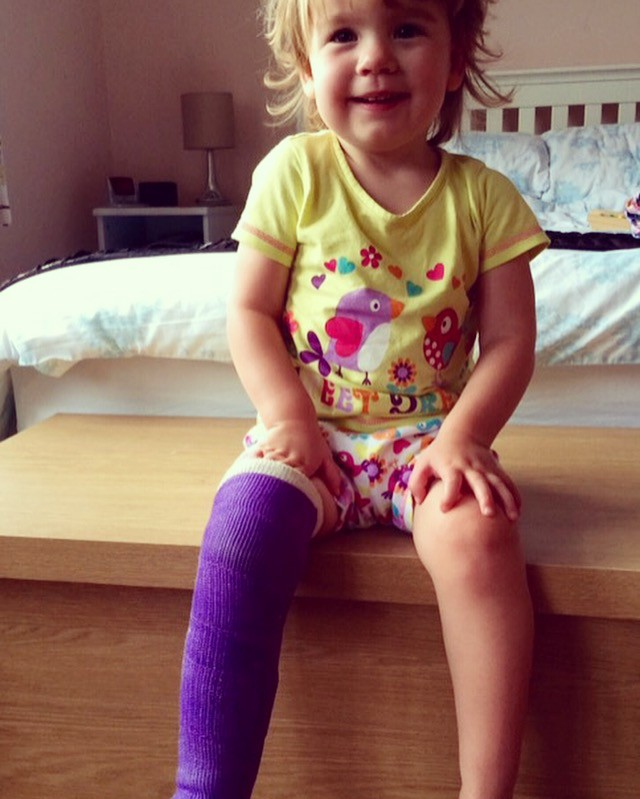 Image of little girl in a purple plaster cast looking very happy